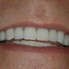 John after Dental Implants and Porcelain Crowns, close-up