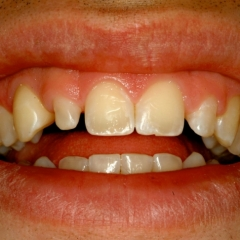 Nicholas' teeth before Cosmetic Bonding