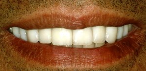 Close-up view of smile after porcelain crowns