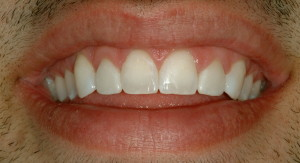 Close-up of teeth after cosmetic bonding