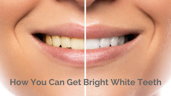 Woman's mouth smiling with the words, How You Can Get Bright White Teeth