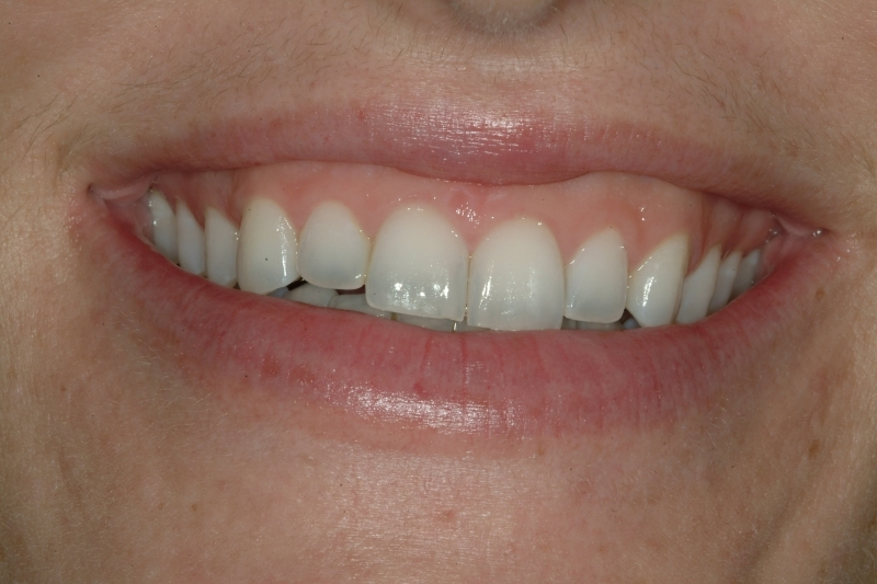 Ashley before veneers, close-up