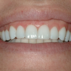 Ashley after veneers, close-up