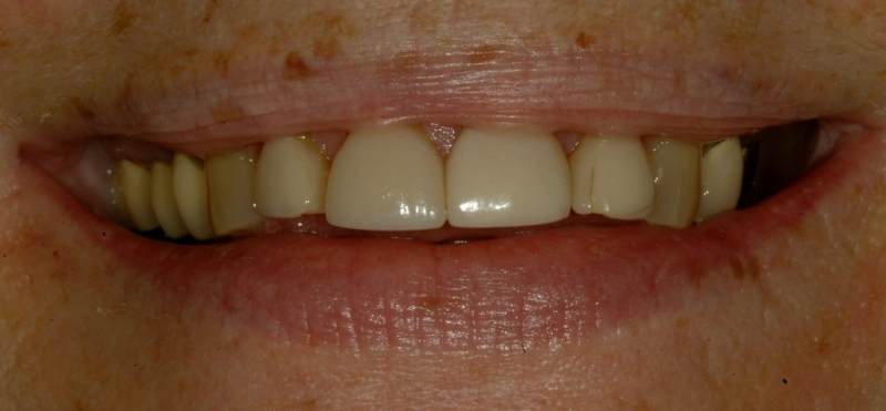 Gale's teeth before crowns, close-up