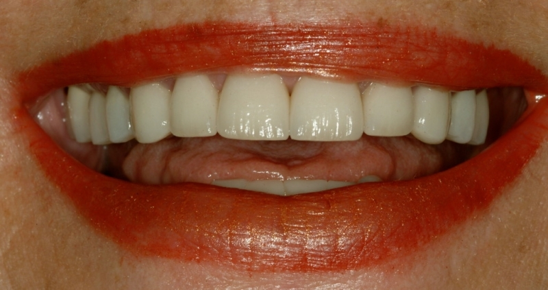 Gale's teeth after crowns, close-up