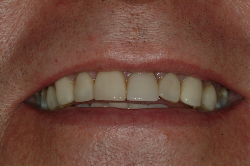 John before Dental Implants and Porcelain Crowns, close-up