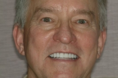 John after Dental Implants and Porcelain Crowns
