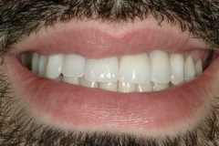 Justin's smile after Composite Restorations