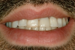 Justin's teeth before Composite Restorations