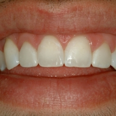 Nicholas' smile after Cosmetic Bonding
