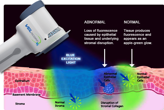 Cancer screening and prevention with VELscope