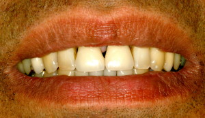 Close-up view of teeth before porcelain crowns