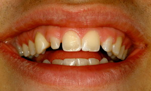 Close-up of teeth before cosmetic bonding