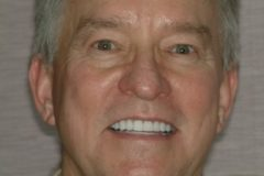 John shows off his smile after Dr. Lamberton repaired his teeth with dental implants and porcelain crowns.