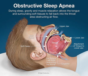 Obstructive sleep apnea can cause many different health problems.